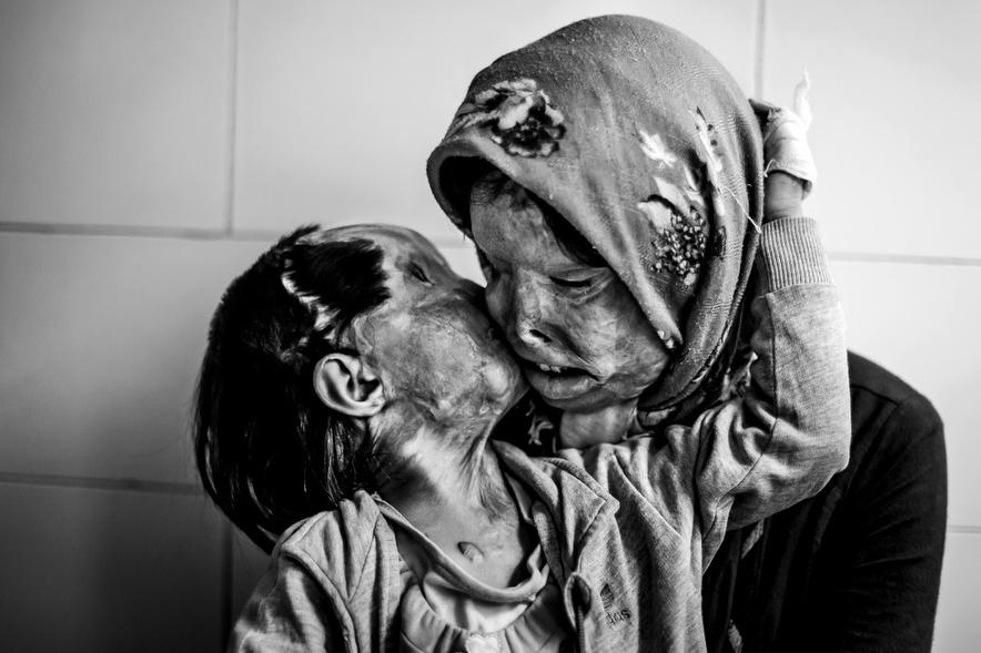 madre e hija desfiguradas por ataque de acido